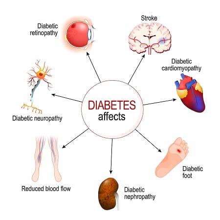 symptoms of Type 2 Diabetes ...